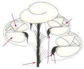 oreille interne : coupe du limaçon